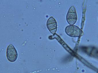 Figure 2: Conidia and conidiogenous cell of M. oryzae